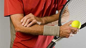 Tennis Elbow Treatment San Mateo